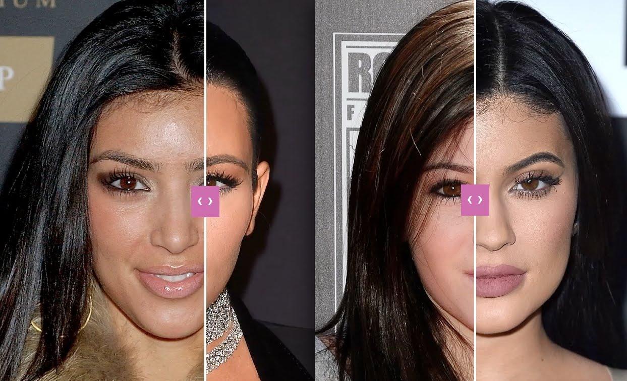 kim-kardashian-before-plastic-surgeon-1.jpg